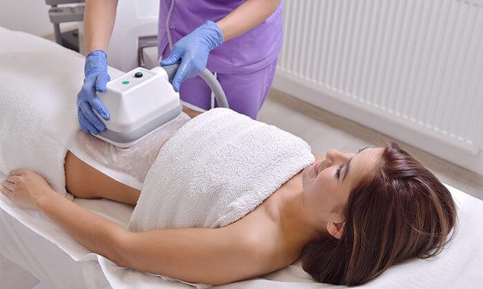 2 טיפול המסת שומן בקור, סטודיו סטיילק בשינקין