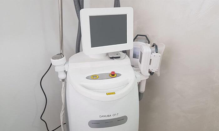 4 טיפול המסת שומן בקור, סטודיו סטיילק בשינקין