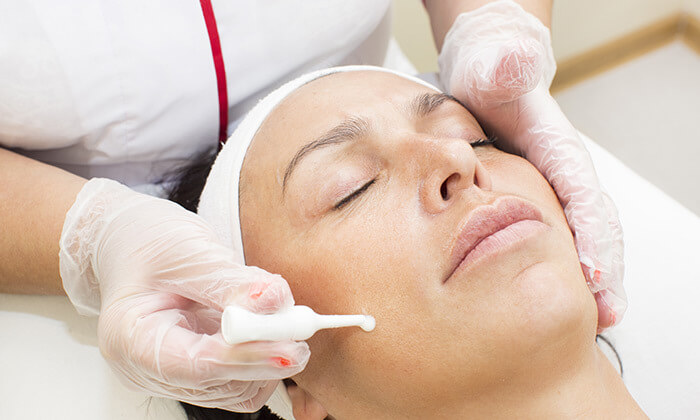 4 טיפולי פנים ביחידה לדרמוקוסמטיקה של לילך קפלן, תל אביב