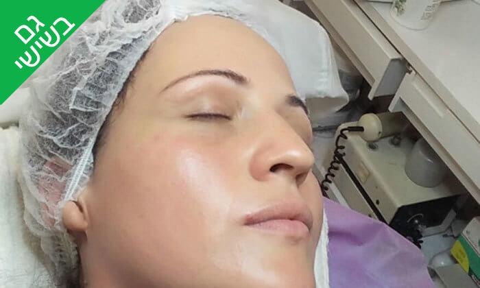 7 טיפולי פנים אצל נורה קוסמטיקס, חיפה