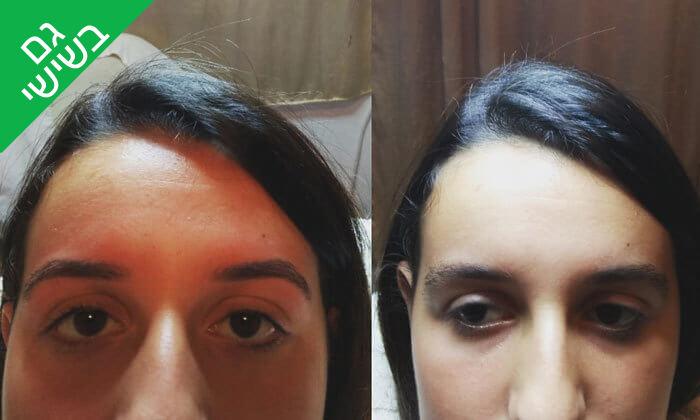 9 טיפולי פנים אצל נורה קוסמטיקס, חיפה