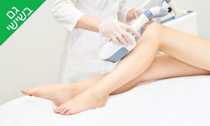 2 טיפולי הסרת שיער בשיטת IPL אצל ויקי אפק, רעננה
