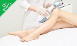 5 טיפולי הסרת שיער - ויקי אפק