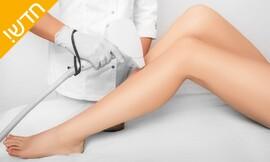 10 טיפולי לייזר ב-2 אזורים