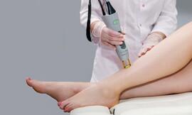 סדרת 5 טיפולי הסרת שיער בלייזר